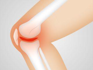 Objawy i leczenie uszkodzonej chrząstki stawowej kolana